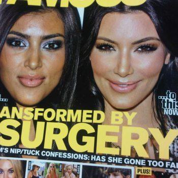 Vai de botox?