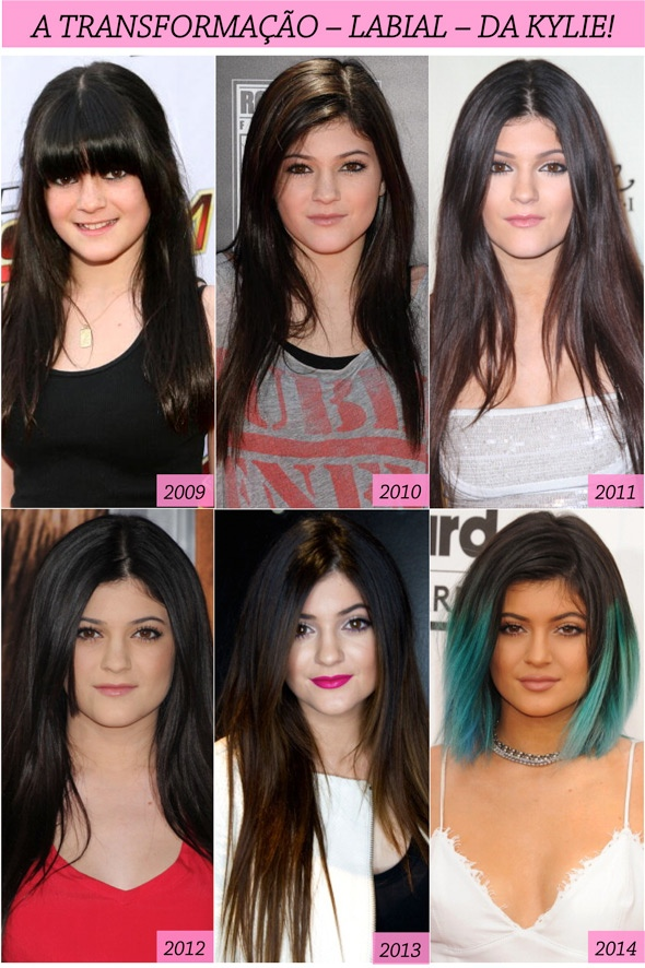 KYLIE-JENNER-TRANSFORMATION