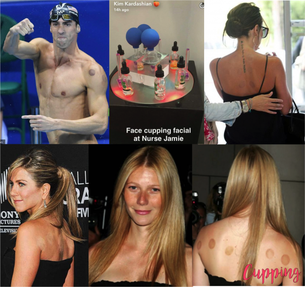 Celebridades-cupping